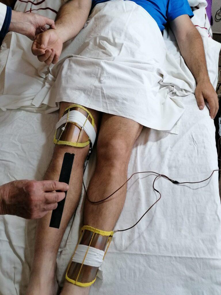 Artrosis de rodilla derecha tratada con D.EM. y Espejo Polarizante